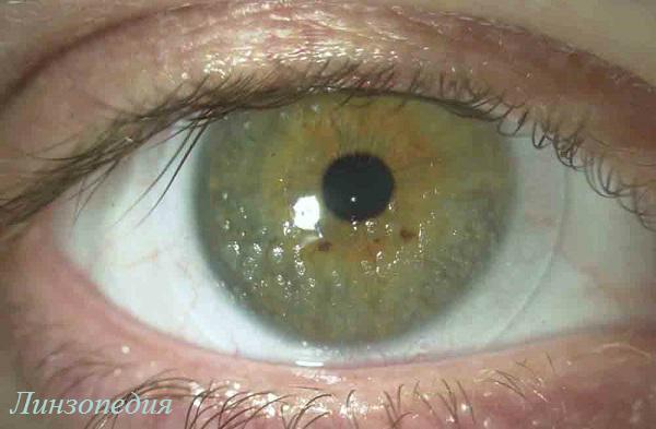 Sigaretnyj-dym-otnositsja-к-veshhestvam-obrazujushhim-otlozhenija-i-pjatna-na-kontaktnyh-linzah