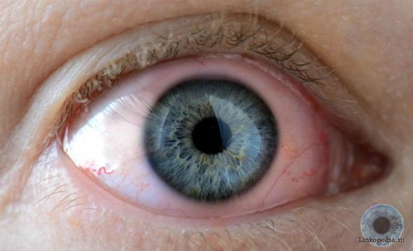 Noshenie-kontaktnyh-linz-samo-po-sebe-vrjad-li-mozhet-vyzvat'-razdrazhenie-glaz