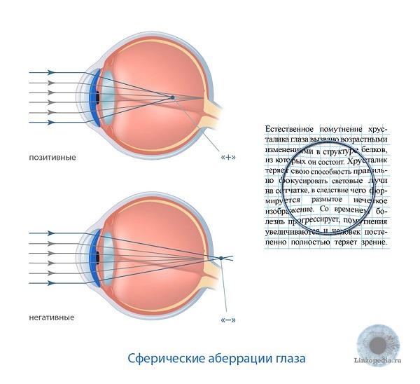 Стоимость лазерной коррекции зрения в