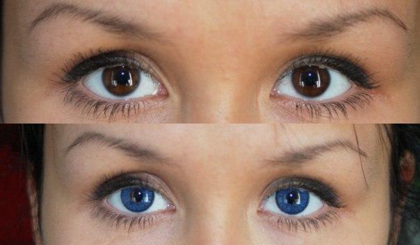 Глаза без линз и с линзами