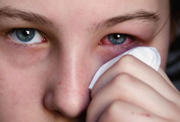 Глазные капли от покраснения и раздражения список и применение