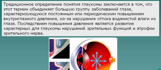 Глаукома глаза: что это такое? Виды, лечение