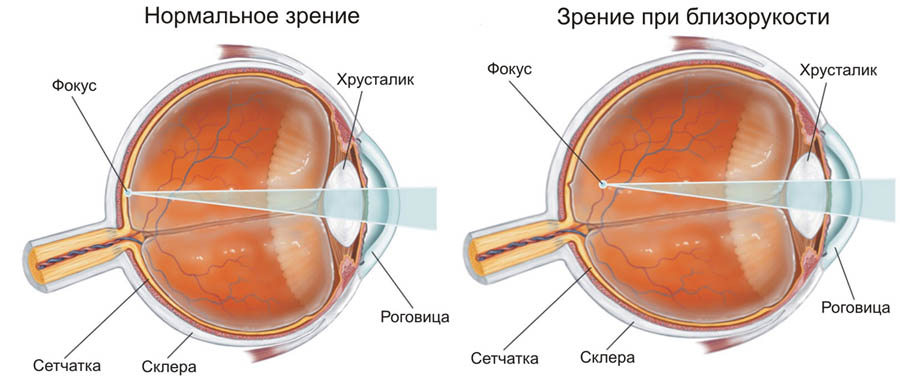 Восстановление зрения закрыть один глаз