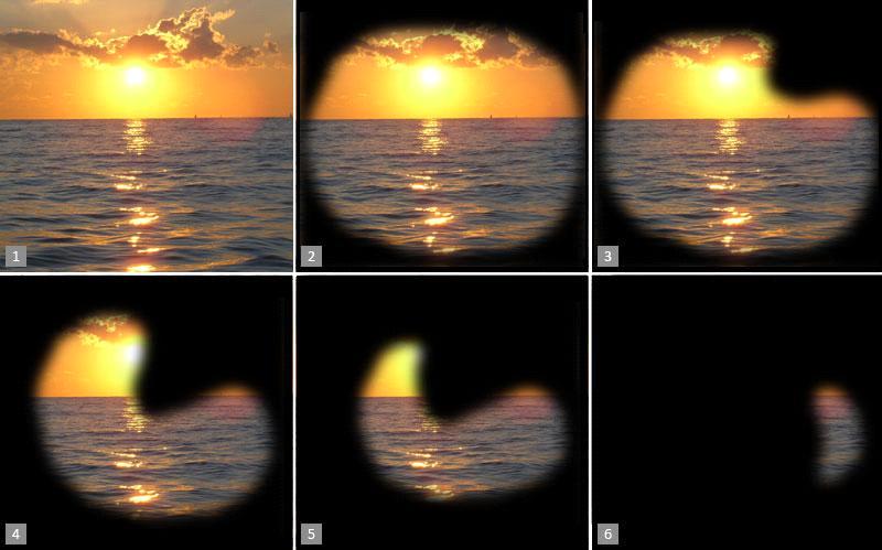Как видит человек на разных стадиях глаукомы
