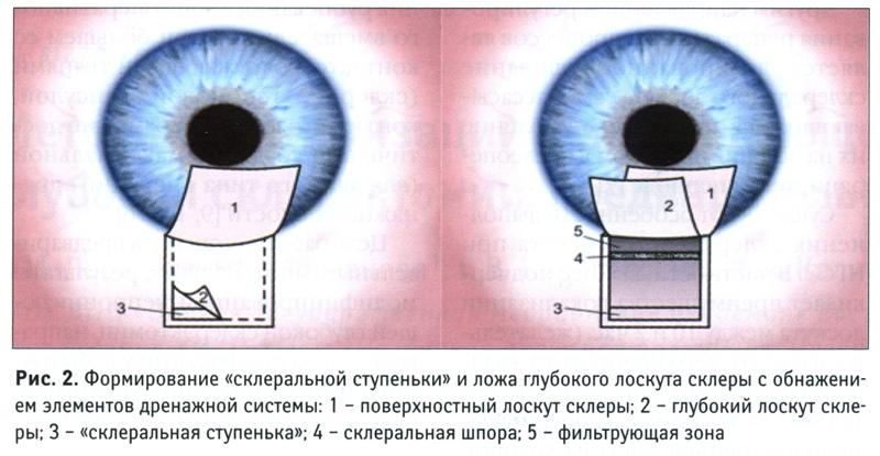 Каналопластика проводящиеся при глаукоме глаза