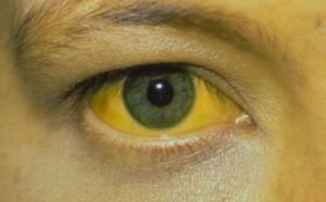 Наряду с изменением цвета кожи под глазами обратите внимание на другие симптомыНаряду с изменением цвета кожи под глазами обратите внимание на другие симптомы