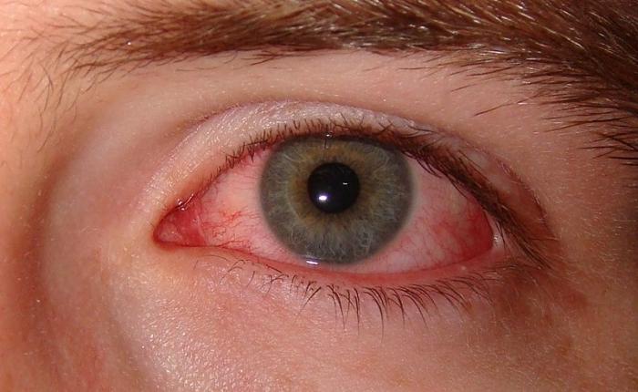 Пример симптома сухого глаза