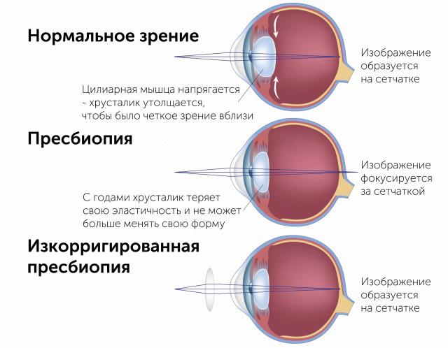 Различие нормального зрения и пресбиопии