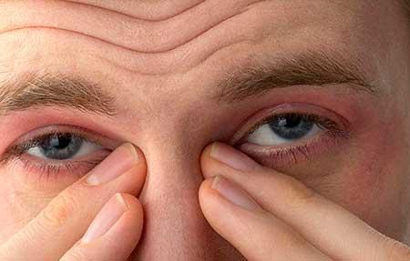 Симптомы аллергии на глазах
