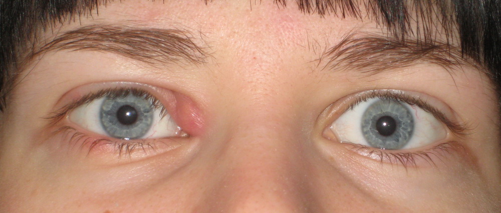 Фурункул на глазу. Запущенная стадия