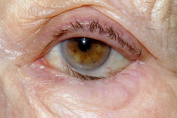 Болезнь глаза - заворот века