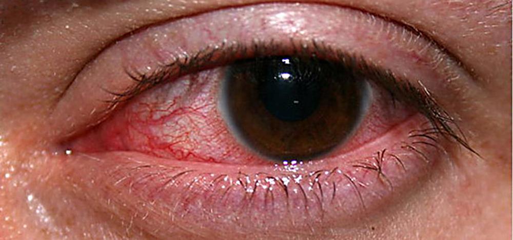 Вирусный кератит