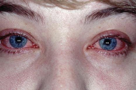 Врачи назначают «Кромофарм» при разных разновидностях аллергических конъюнктивитов