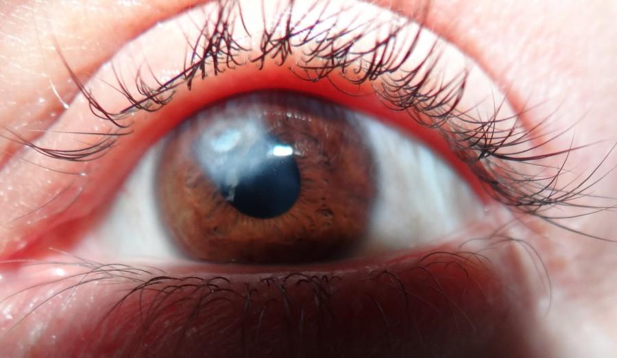 Глаз при лейкоме