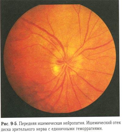 Ишемическая нейропатия