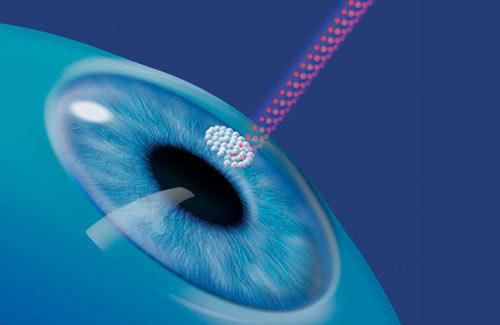 Лазерная коррекция зрения минусы