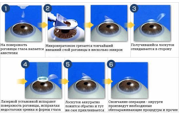 Метод проведения лазерной операции