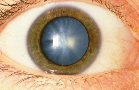 Народные способы лечения катаракты самые действенные рецепты