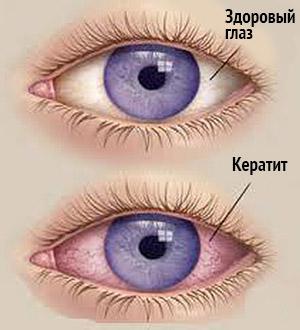Отличие между здоровым глазом и кератитом