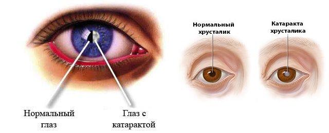 Побочным эффектом глазных капель может являтся катаракта