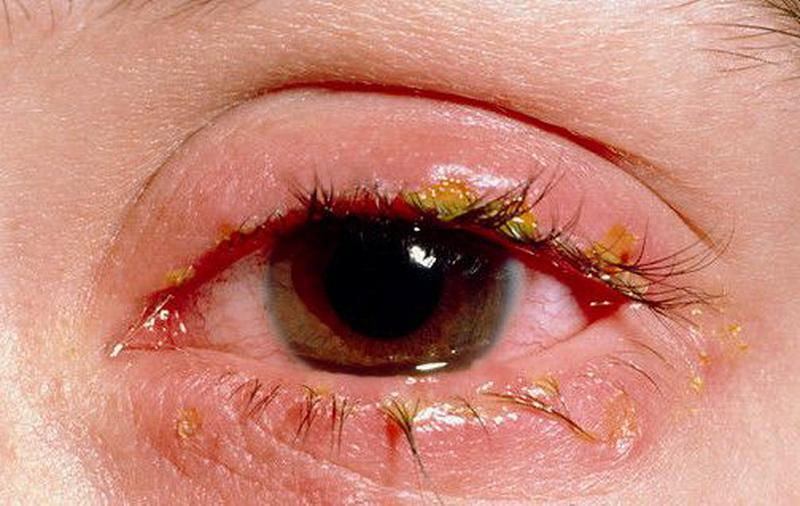 Побочным эффектом при применении глазных капель Кромофарм может являться блефарит