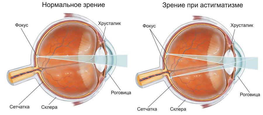 Различие между астигматизмом и нормальным зрением