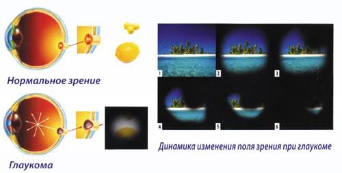 Глаукома является противопоказанием к ношению однодневных контактных линз