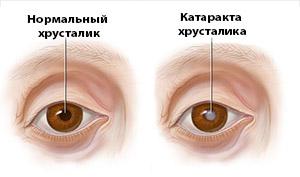 Здоровый глаз и глаз с катарактой