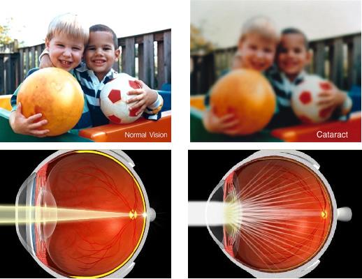 Как видит здоровый глаз и глаз с катарактой