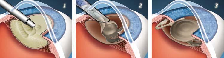 Лечение катаракты хирургическим путем