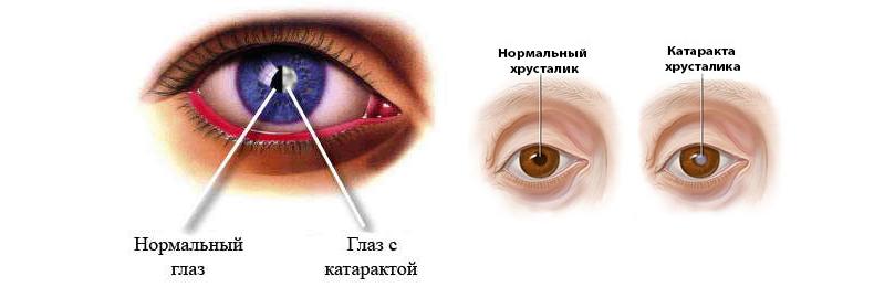Отличие глаза с катарактой от здорового глаза