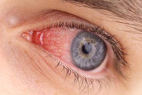 Покраснение глаз вызванное жжением глаз