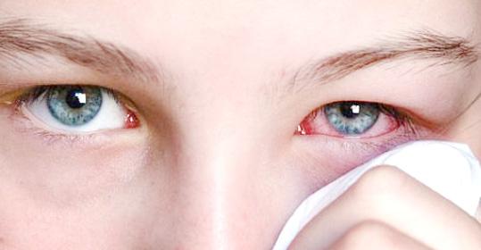 Препарат может вызывать аллергию, припухлости и покраснении