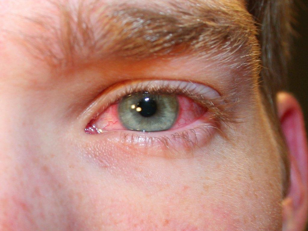 Тимолол применяется при покраснении глазных сосудов