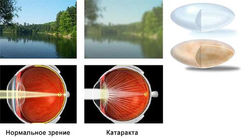 Что происходит в глазу при катаракте