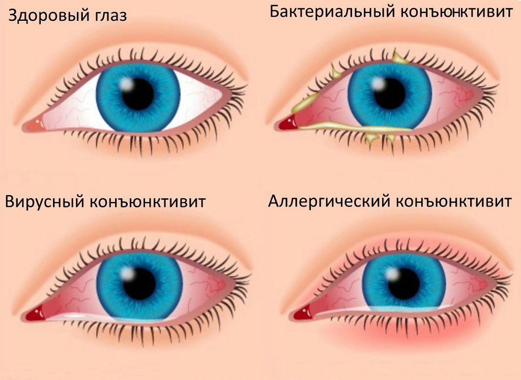 3 вида конъюнктивита