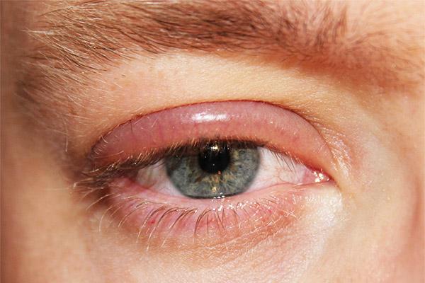 Глазное заболевание - блефарит