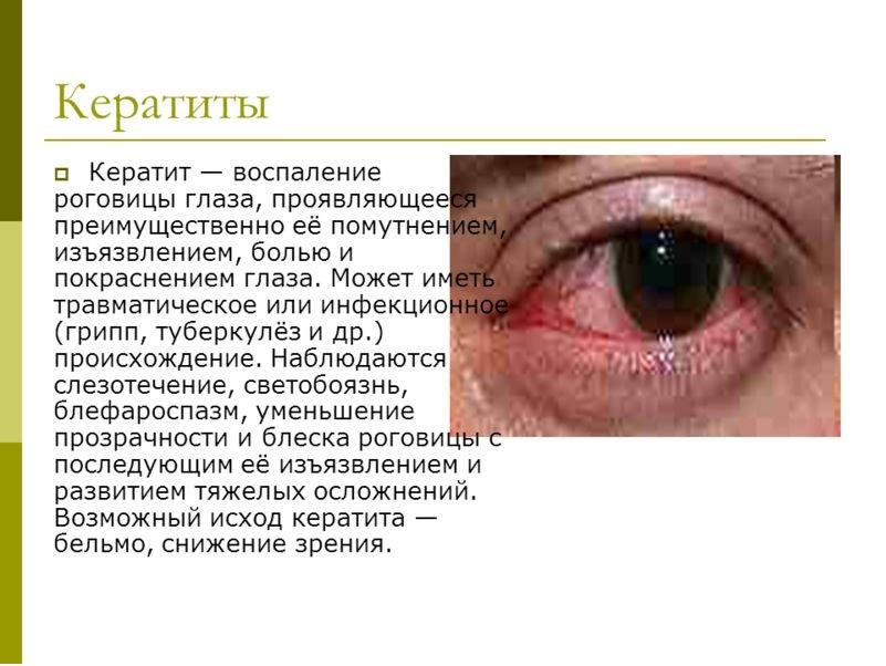 Глазные капли Дексаметазон применяются при кератите
