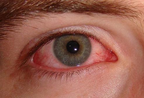 Глазные капли Ципролет применяют при вирусных поражениях глаз