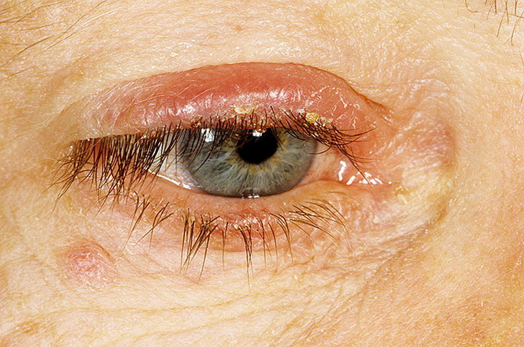 Заболевание глаз - Блефарит
