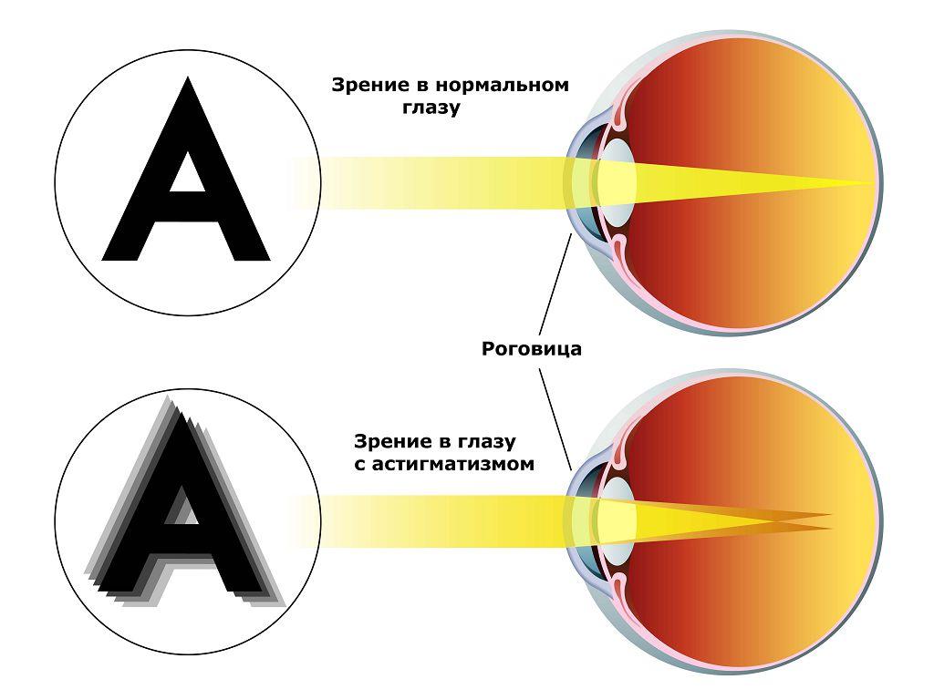 Зрение в глазу с астигматизмом