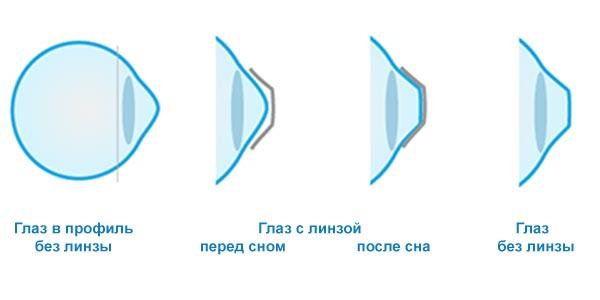 Как действуют ортокератологические линзы