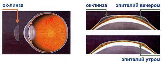 Ортокератологические линзы. Принцип действия