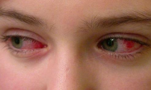 Покраснение глазного яблока может являтся признаками попадания инфекции