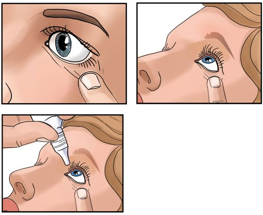 Способ применения Сульфацил натрия - закапывать в конъюнктивальный мешок