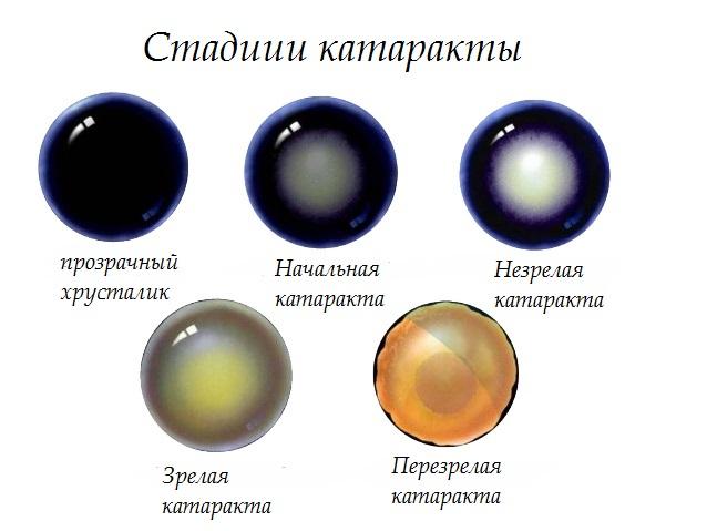 Стадии помутнения зрачка при катаракте