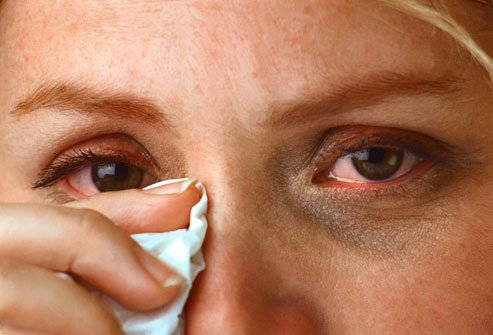 Сульфацил натрия может вызвать чувство жжения в глазах