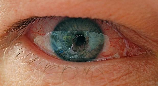 Сухость глаз - признак аллергии