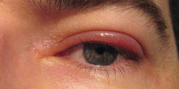 Цикломед может вызвать аллергическое опухание век