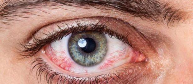 Слезиться один глаз чем лечить в домашних условиях 506